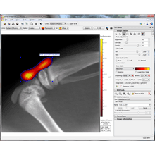 Mouse knee using IVIS Lumina XRMS and Living Image Software