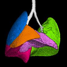 Segmented Lung Image using Quantum GX microCT Imaging System