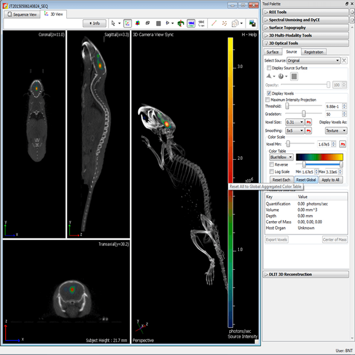 Data Acquisition System Ct Ct Image Quality And Dose