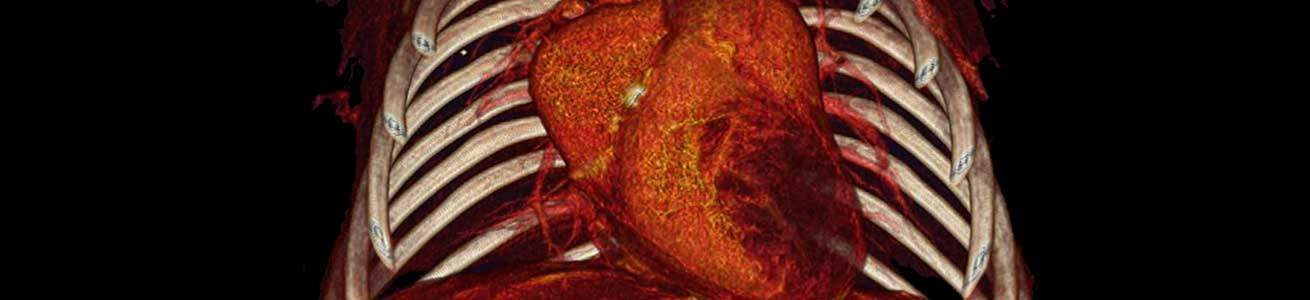 MicroCT imaging of mouse heart imaged using Quantum GX2
